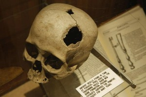 chi-museum-surgical-science-20130227-001