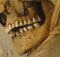 mfor03-mummy-teeth