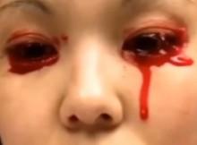 akys-kraujas