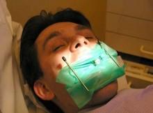 britas-dantu-gydymas