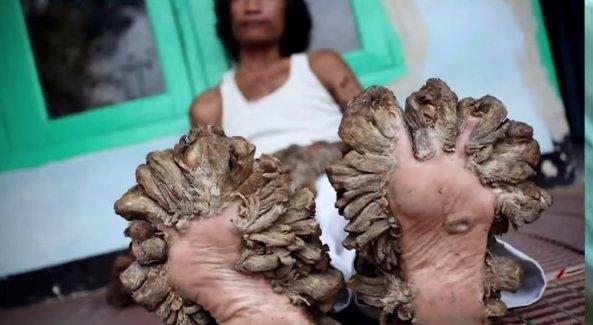 Liga – organizmo veiklos sutrikimas. Sergančiame žmogaus organizme funkcionuoja visi organai ir sistemos, tačiau sutrinka gebėjimas prisitaikyti prie aplinkos, sumažėja ar visai pranyksta darbingumas.Laikotarpis trunka nuo kelių dienų (pvz., sergant gripu) iki kelių dešimčių metų (pvz., sergant sifiliu, tuberkulioze). Jo metu atsiranda visi ligai būdingi simptomai. Perėjimas į patologinę būklę – pvz., po endokardito atsiranda širdies yda. Kartais liga komplikuojasi – atsiranda papildomų patologinių pakitimų (pvz., skarlatina dažnai komplikuojasi vidurinės ausies uždegimu)