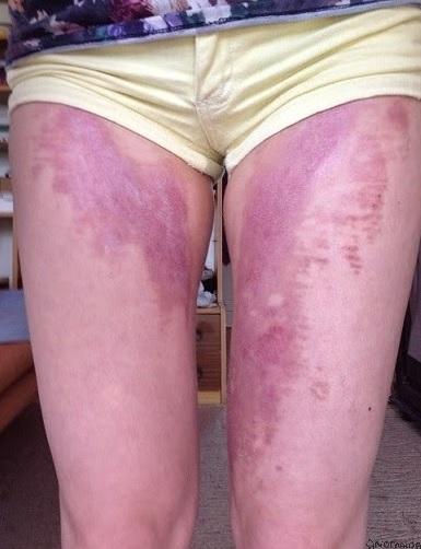 Taip autorės kojos atrodė po 9 savaičių.