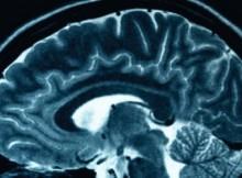 brain.scan_1272390402