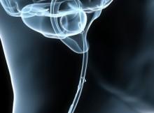 brain1-600x250
