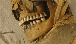 mfor03-mummy-teeth