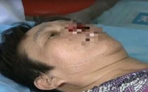 kinija-moteris-vyras-nosis