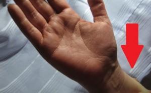 linija-ranka