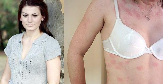 alergiskavandeniui